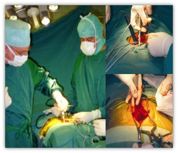 Fuhr Intraoperative